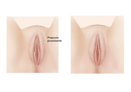 Clitoriplastia